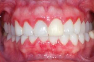 Bleeding gums, Gingivitis