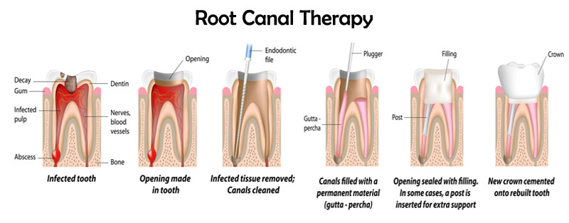 Root Canal Therapy , sydney Dentist