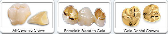 Dental Gold Crowns