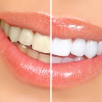 Zoom Teeth Whitening in Sydney from $299