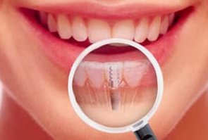 Dental Implant - A Perfect Smile is a Perfect Gift